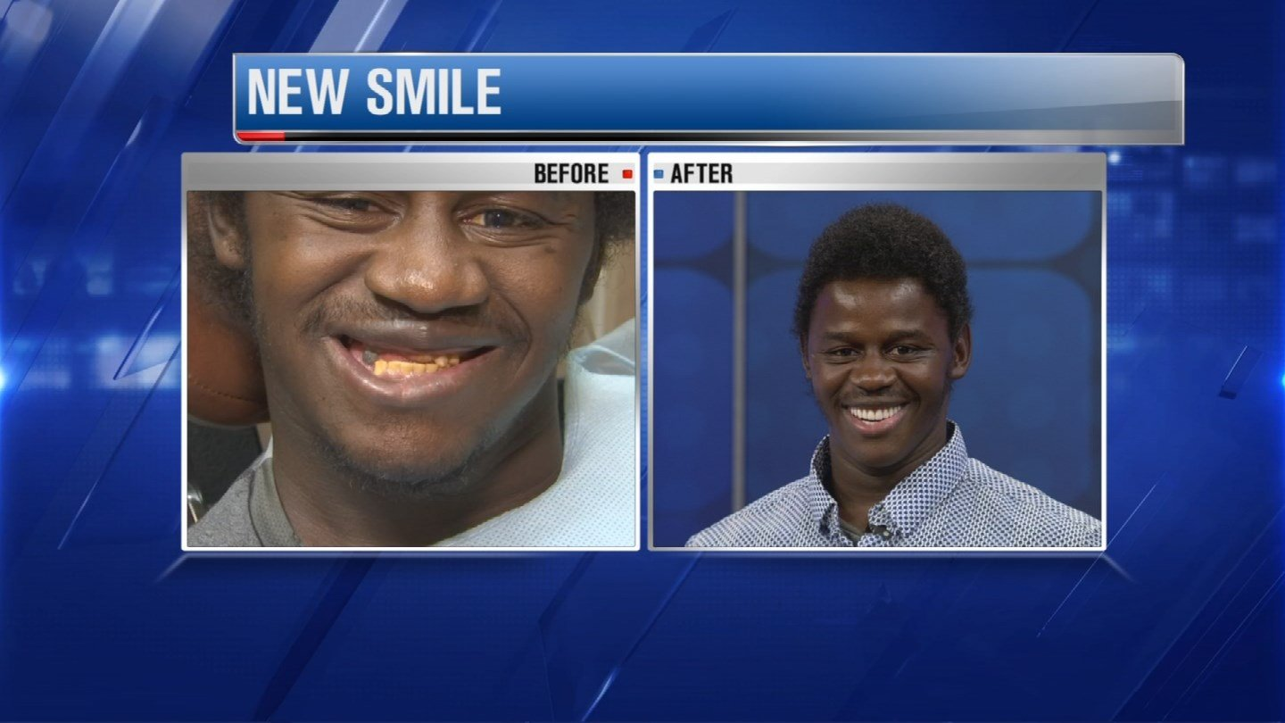 Raymond Gallup's stunning new smile (Source: 3TV)