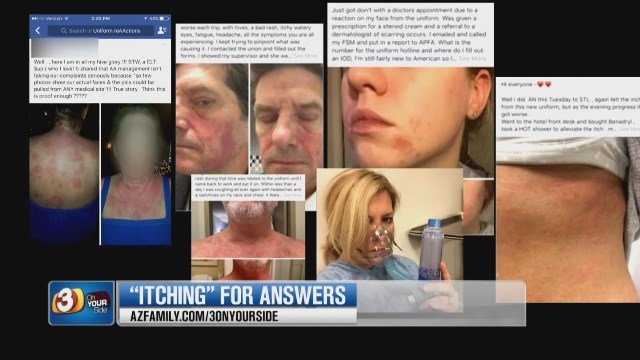 Employees with American Airlines say they have photos that show skin rashes, hives, even respiratory problems linked to the uniforms. (Source: 3TV)