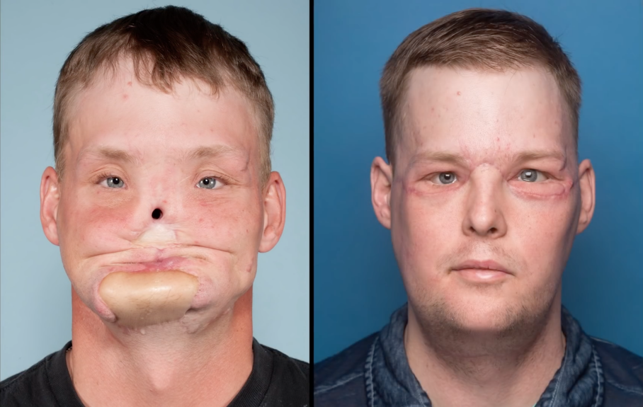 Andy Sandness, before and after the transplant (CNN)
