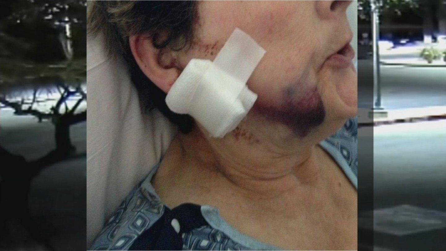 The woman who was shot in the face while playing Pokemon Go in Peoria spoke on Wednesday. (Source: 3TV/CBS 5)