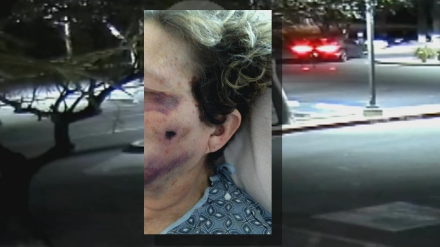 Close up pictures of her wound show the bullet entered the left side of her face around the cheekbone area and came out directly in front of the right ear. (Source: 3TV/CBS 5)