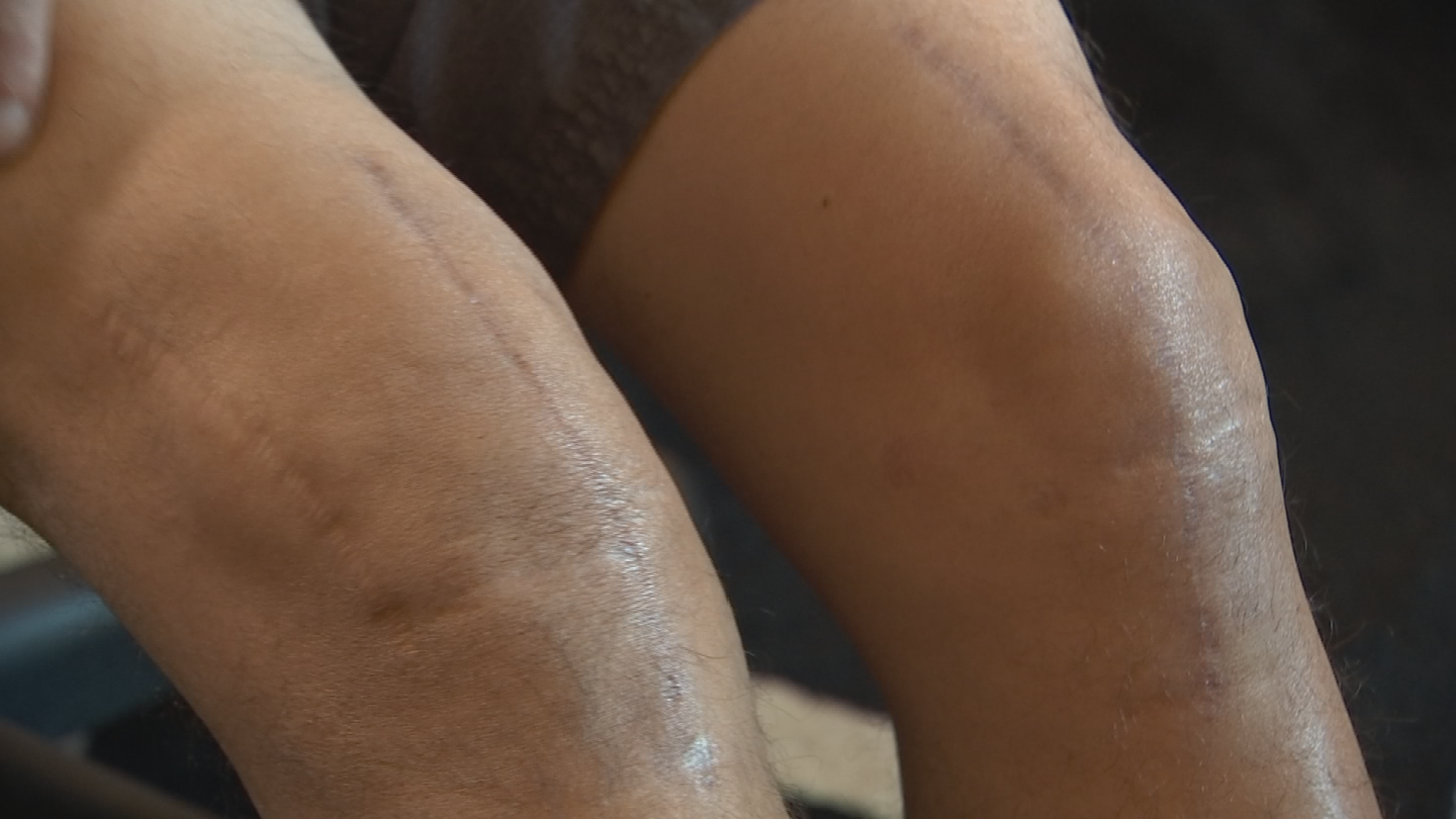 A new survey by Dignity Health show many patients wait far too long before seeking treatment for orthopedic pain. (Source: 3TV/CBS 5)