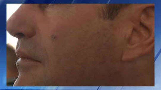 Gov. Doug Ducey had a mark on his cheek after he had something removed. (Source: 3TV/CBS 5)