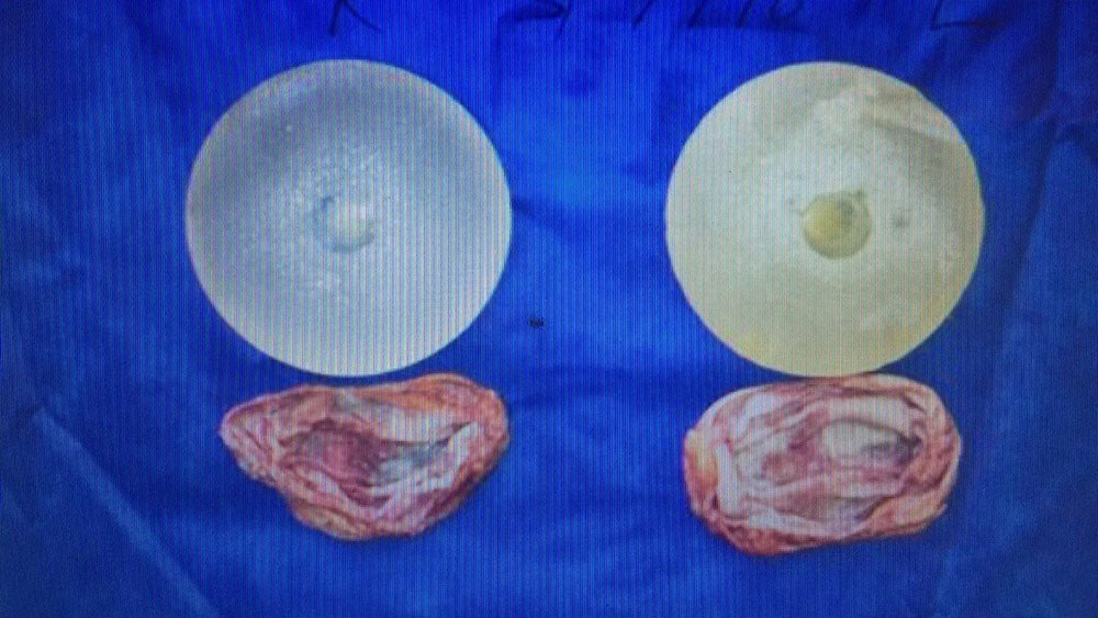 Removed implants and capsules (Source: 3TV/CBS 5)