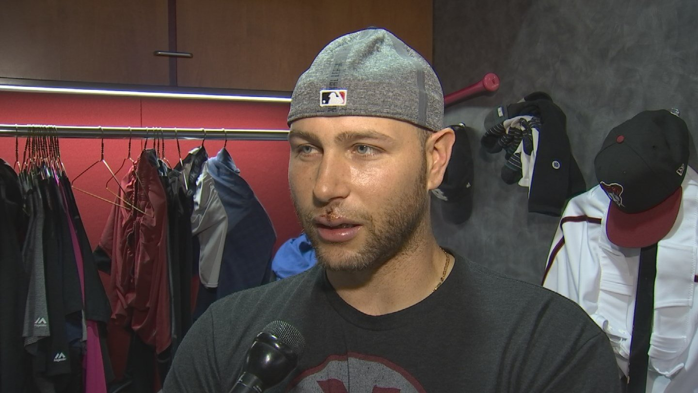Despite stitches in his lip and bonded teeth, Arizona Diamondbacks catcher Chris Iannetta can smile about Friday night. (Source: 3TV/CBS 5)