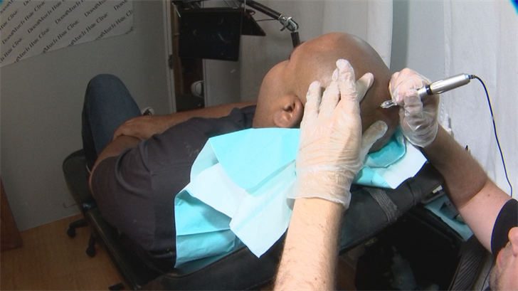 A handful of clinics in the Valley offer scalp tattoos designed to look like hair stubble. It's called scalp micropigmentation. (Source: 3TV/CBS 5)