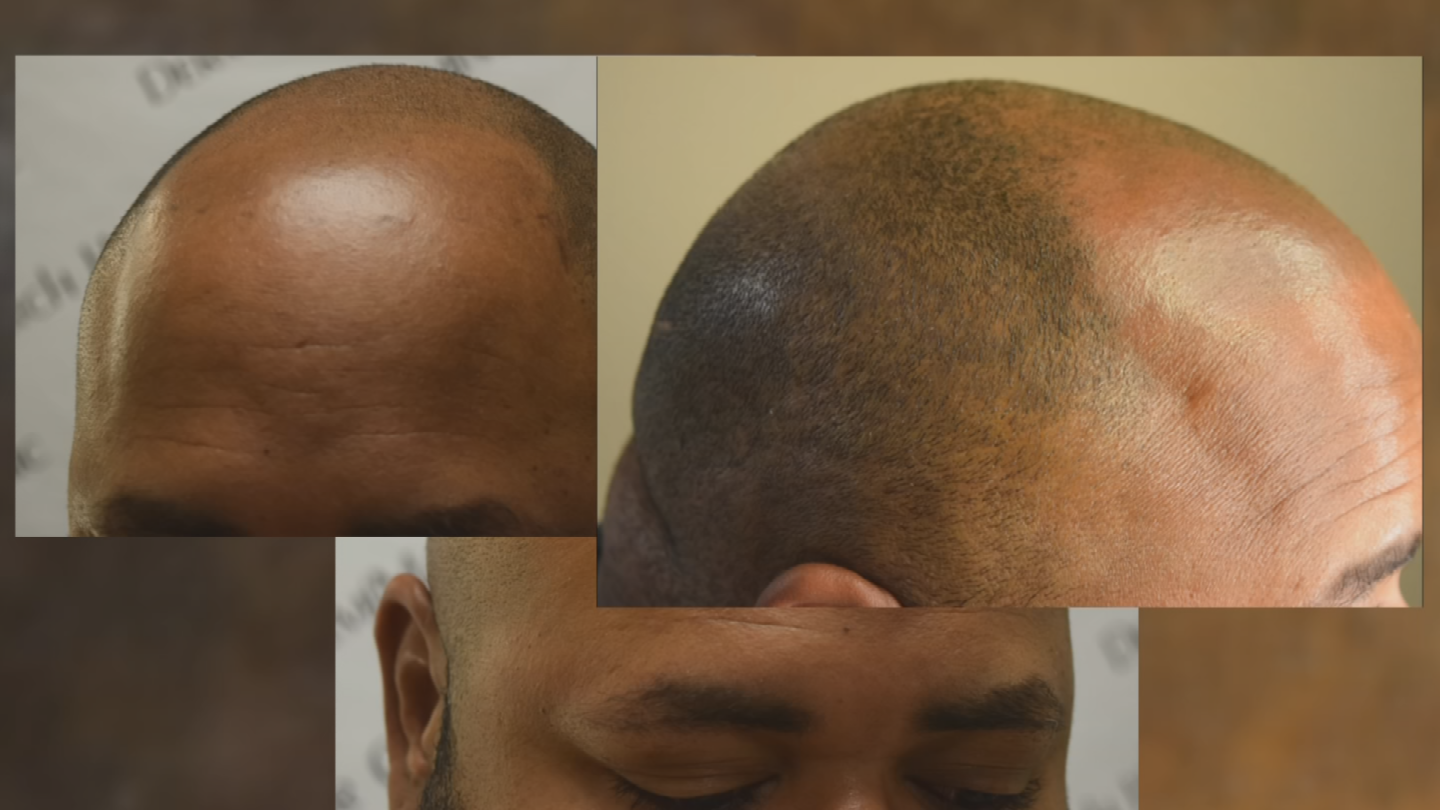 "Prices range depending on the amount of hair loss, but Garrett Duell said the average man with ""horseshoe pattern"" baldness can expect to pay about $2,800. (Source: 3TV/CBS 5)"