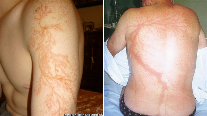 This may look like an intricate tattoo, but it's actually a skinpattern caused by lightning strikes. (Source: Front Porch/New England Journal of Medicine)