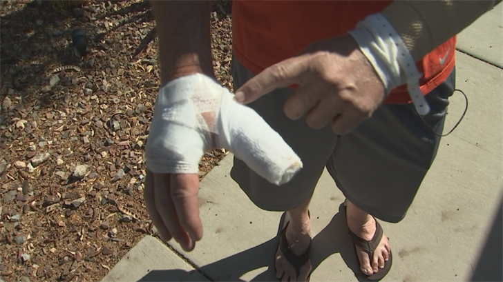 Verschoor suffered bites and scratches on his right hand and left arm. (Source: 3TV/CBS 5)