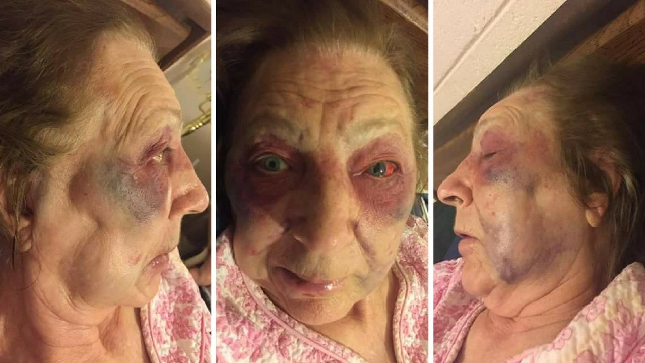 A masked man entered an 82-year-old's home Saturday morning and assaulted her. (Source: Facebook)