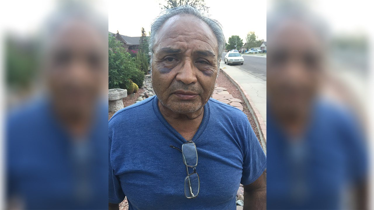 Manny Lara was beaten outside of his home and he said it was because he told a neighbor to slow down. (Source: 3TV/CBS 5)