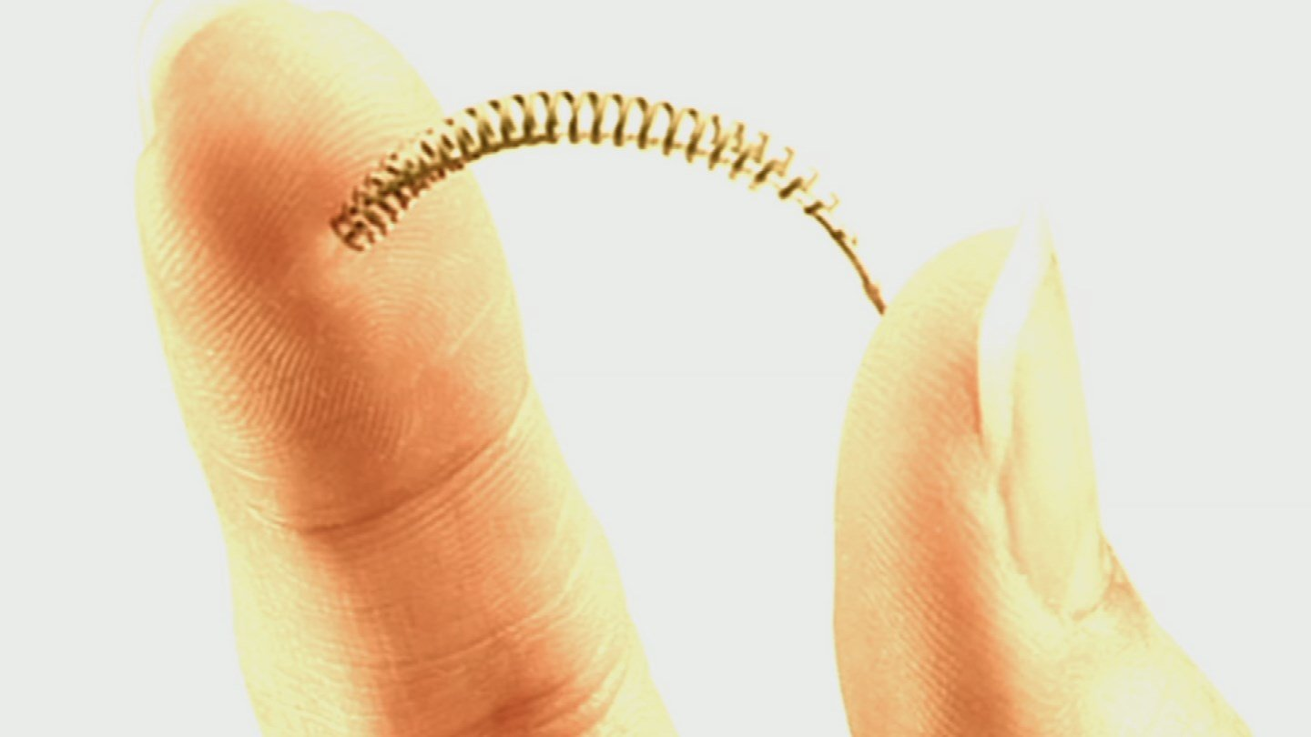 Implantable Essure birth control device (Source: Bayer)