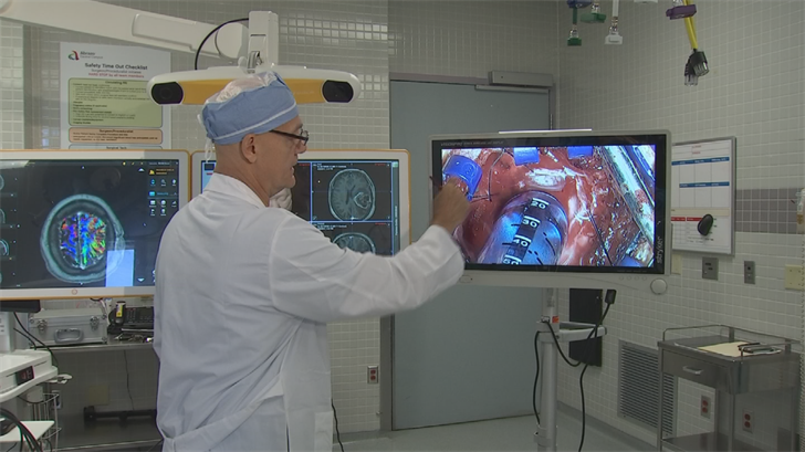 Dr. Marco Marsella is using new cutting-edge mapping software for the brain. (Source: 3TV/CBS 5)