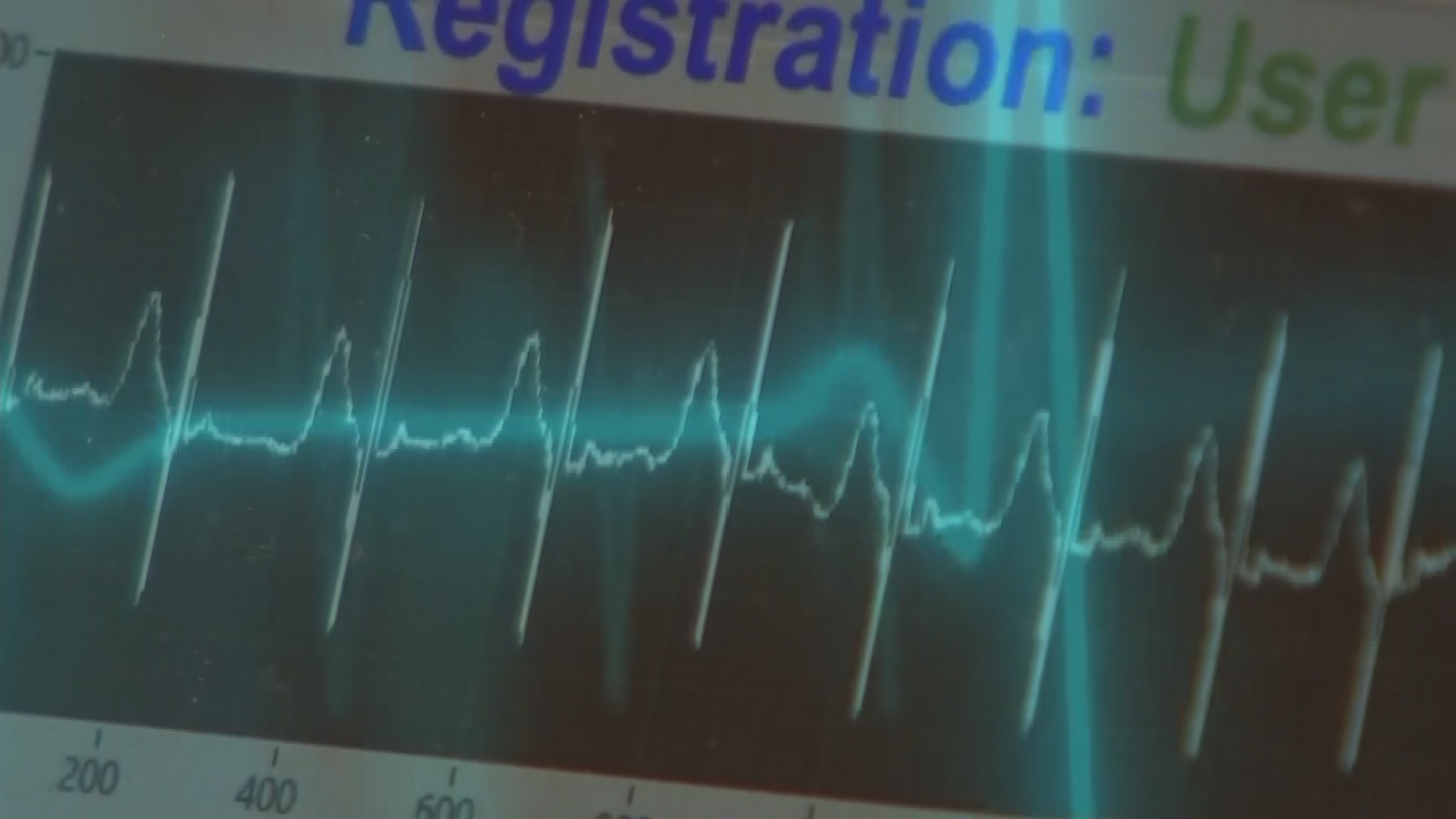 Each human heart has its own kind of signature to that individual and the way to determine that is through our electrocardiogram. (Source: 3TV/CBS 5)