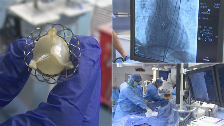 There's a new heart valve replacement surgery that has little to no downtime. (Source: 3TV/CBS 5)