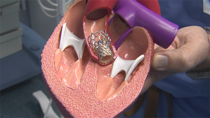 The life-saving TAVR procedure became cutting edge about 5 years ago. (Source: 3TV/CBS 5)