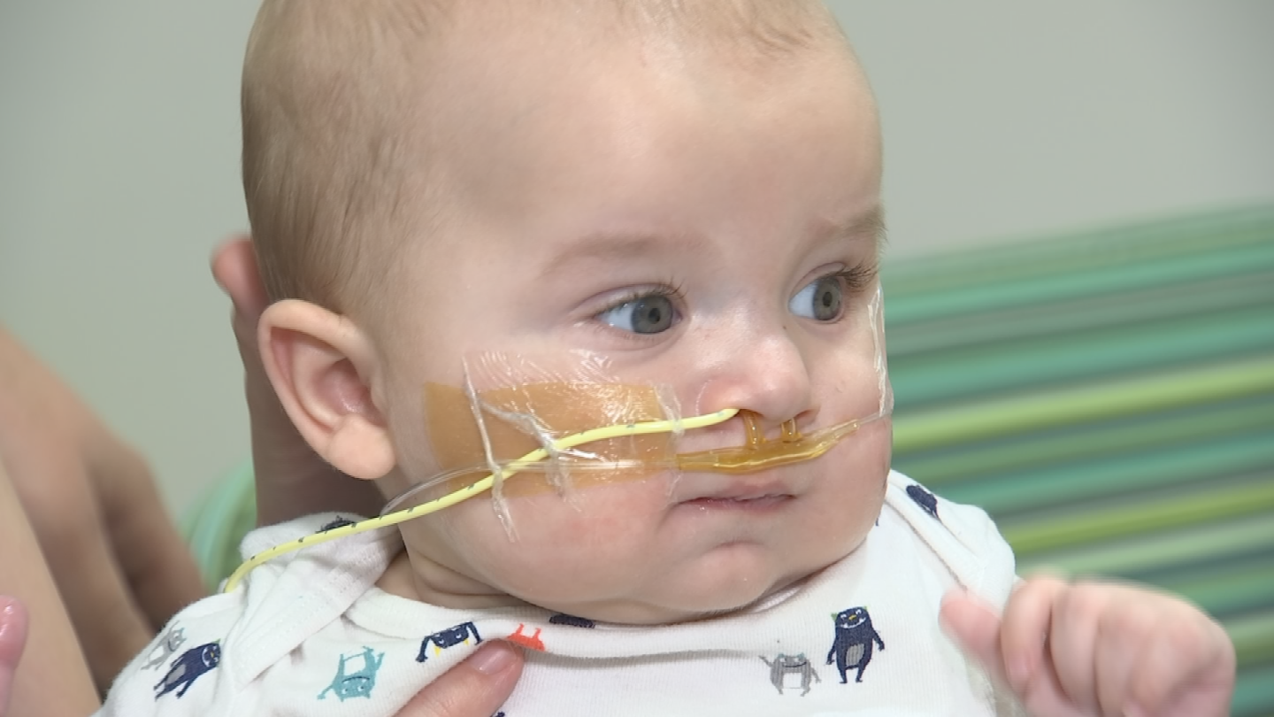 Jaxton, the first baby in Arizona to have melody valve implantation in the mitral position. (Source: 3TV/CBS 5)