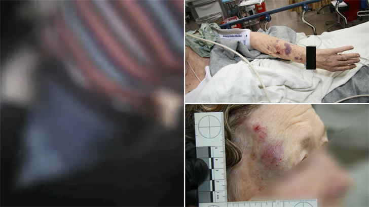 The Mesa Police Department released body camera video of when officers forced a woman to the ground and she ended up in the hospital.  (Source: Mesa Police Department)