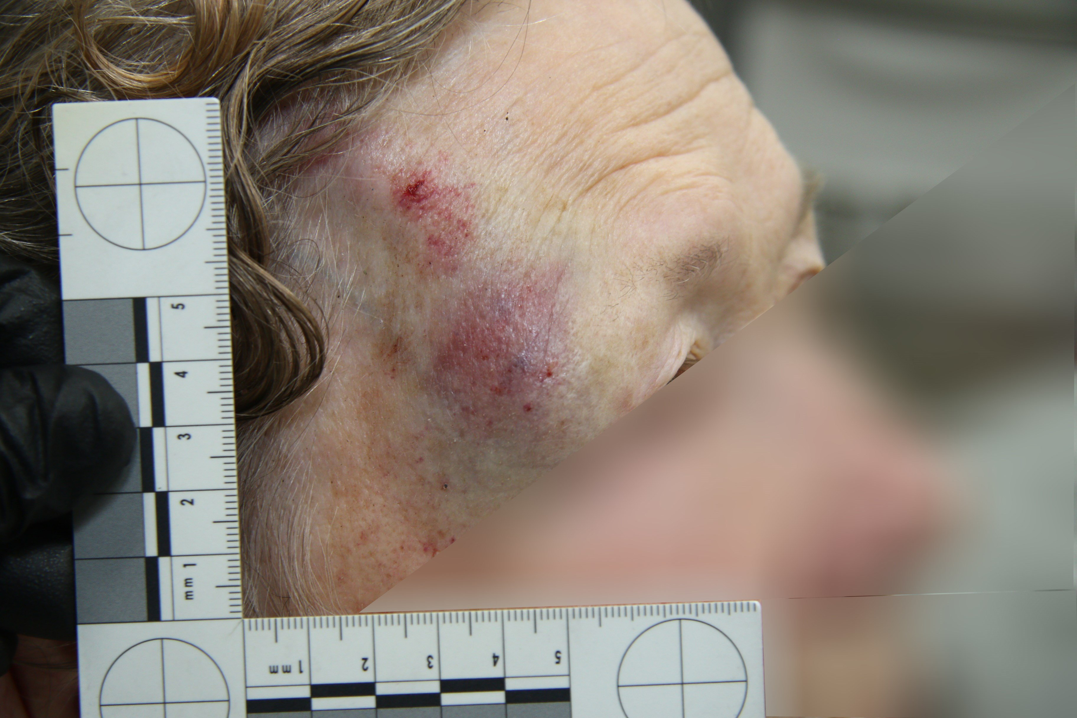 """Police saw that she was hurt and said firefighters should look at the """"bump on her head."""" (Source: Mesa Police Department)"""