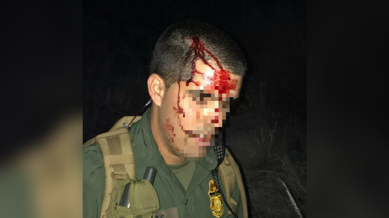 A Border Patrol agent had his head strike a rock because of an illegal immigrant. (Source: U.S. Customs and Border Protection)