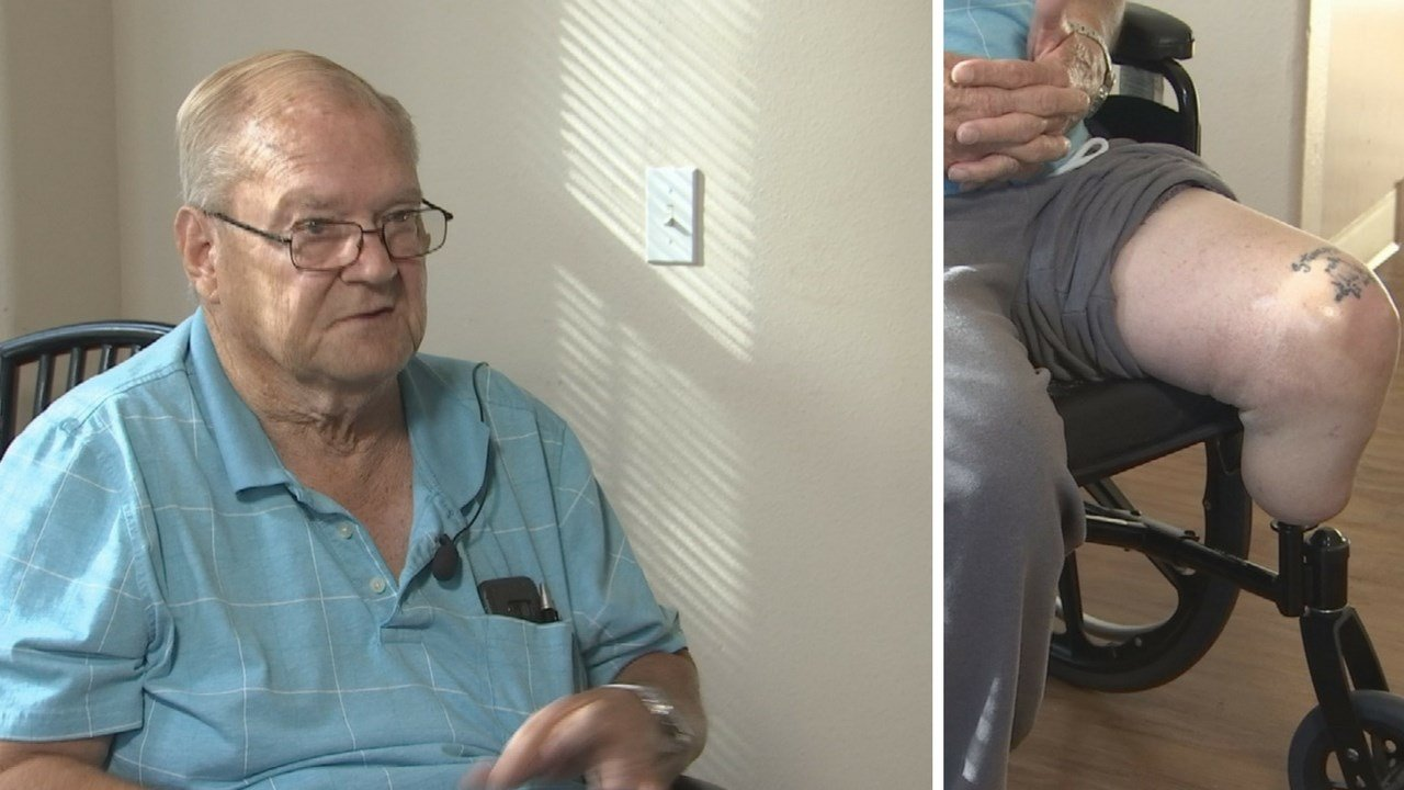 John French, 72, lost his prosthetic leg skydiving. (Source: 3TV/CBS 5 News)
