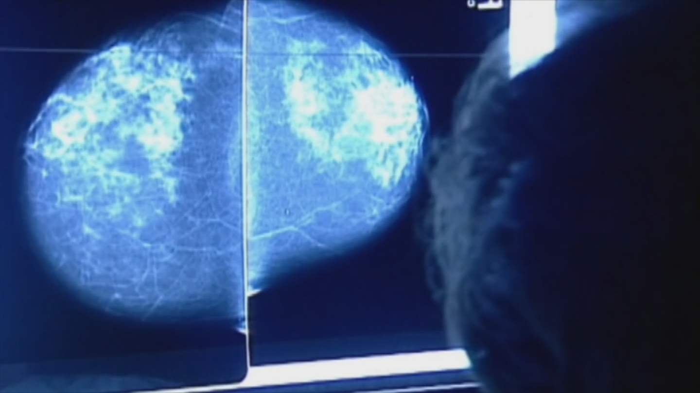 The particular strain is called anaplastic large cell lymphoma and doctors we spoke with tell us women shouldn't get too worried because this type of lymphoma is very rare. (Source: 3TV/CBS 5)