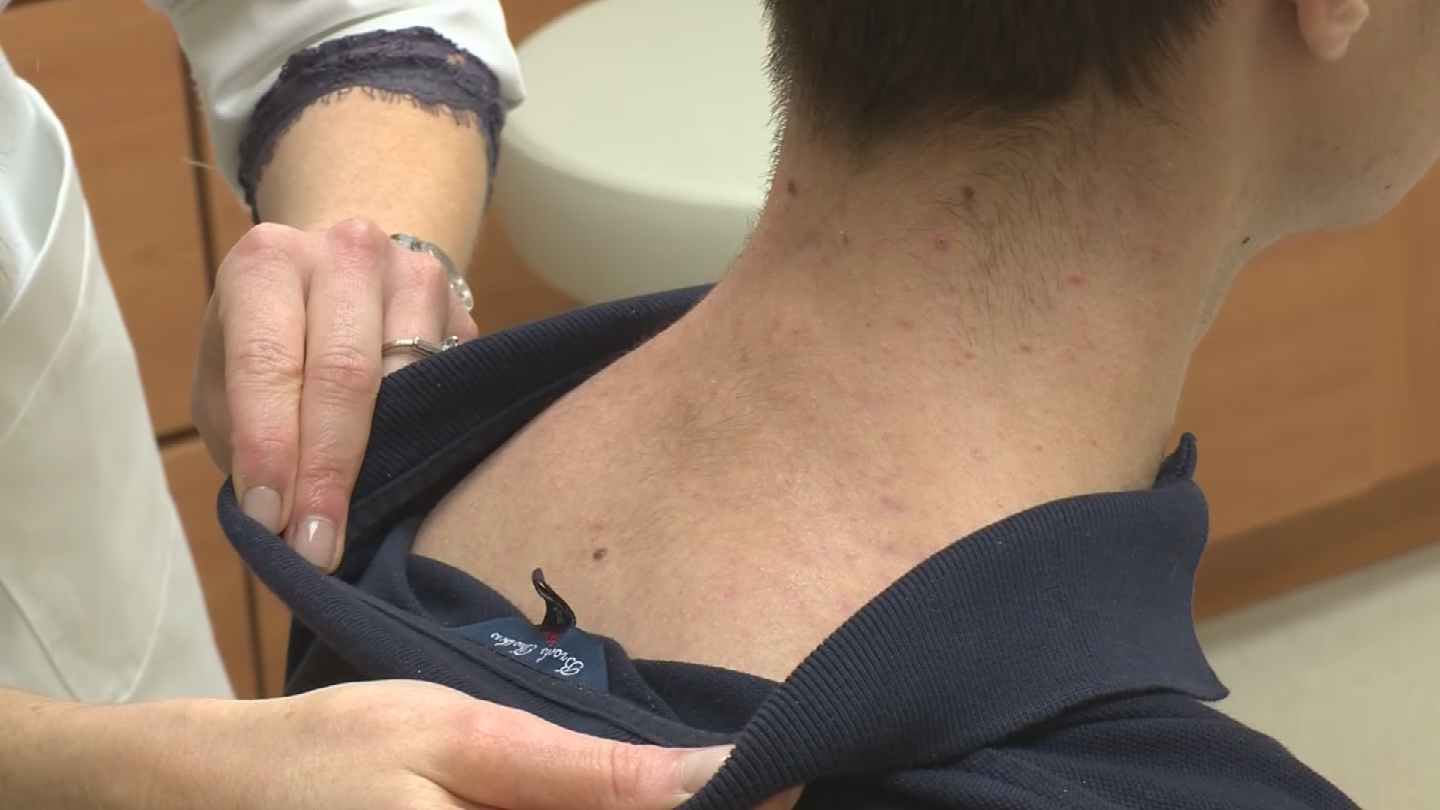 "The Center for Dermatology and Plastic Surgery is holding a national event with free skin cancer screening on May 7, also known as ""Melanoma Monday."" (Source: 3TV/CBS 5)"