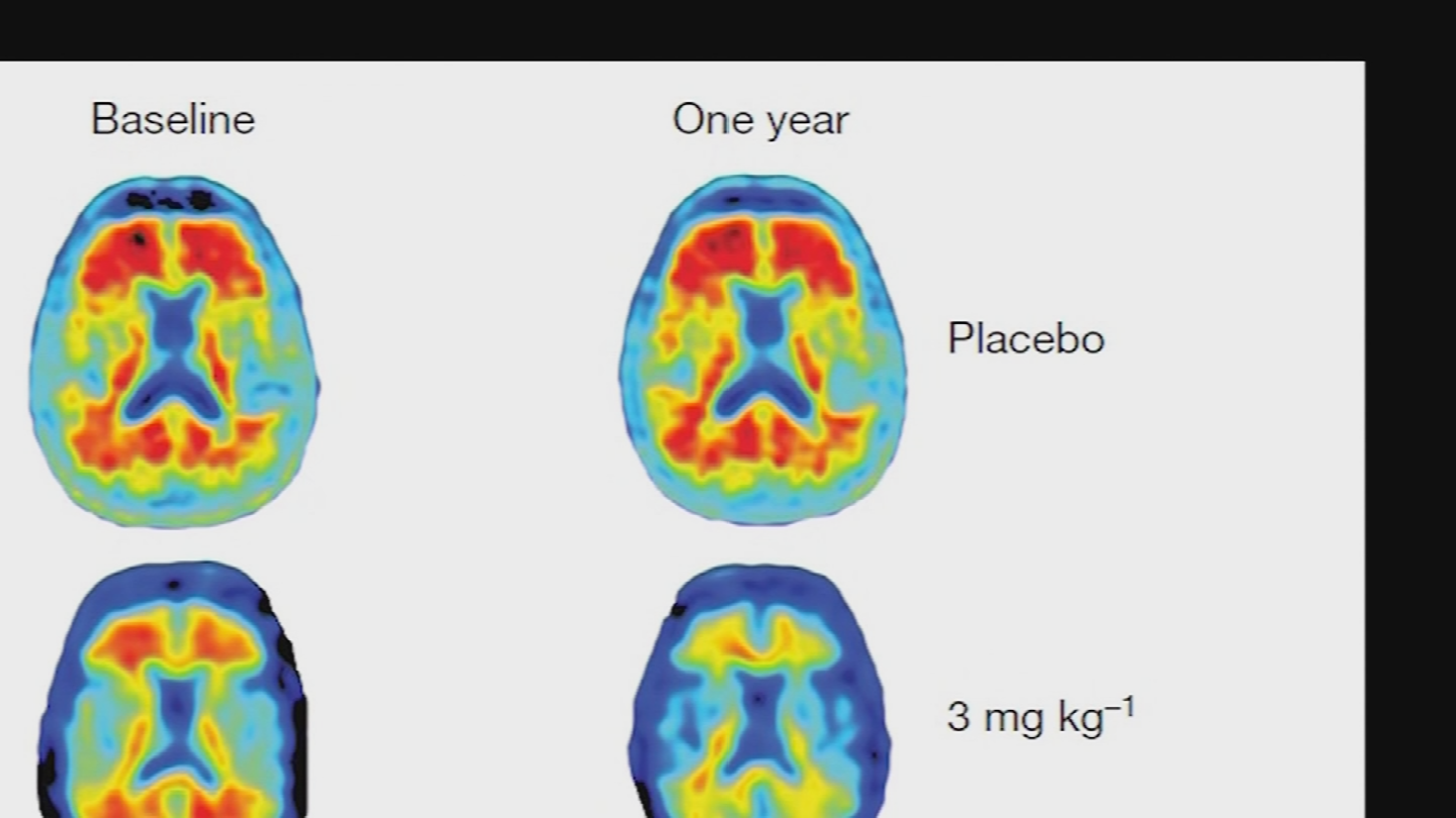 This is why news of a possible Alzheimer's vaccine is so exciting. (Source: 3TV/CBS 5)