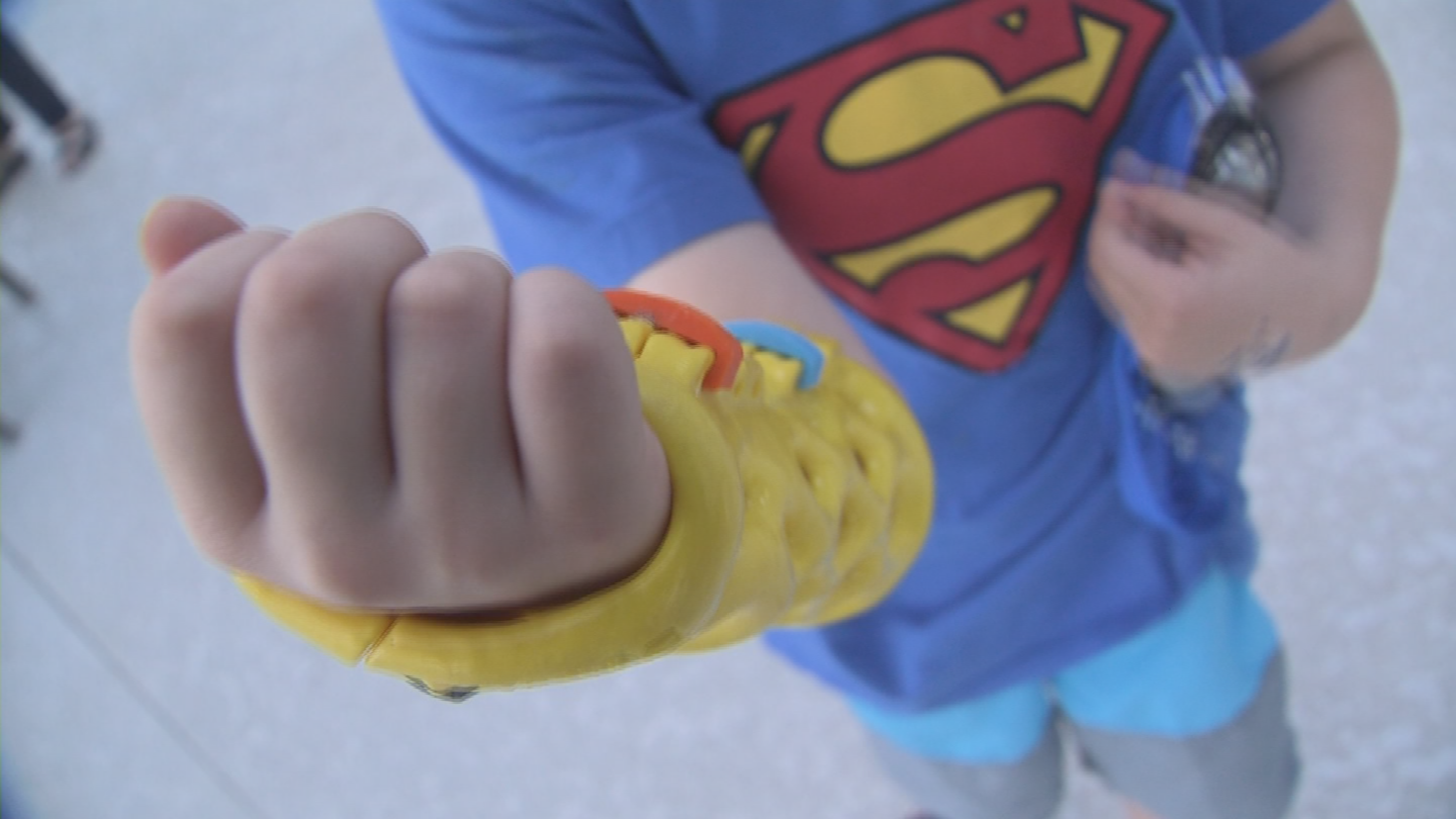 A 3D printed hard cast makes it a little more bearable to wear one. (Source: 3TV/CBS 5)
