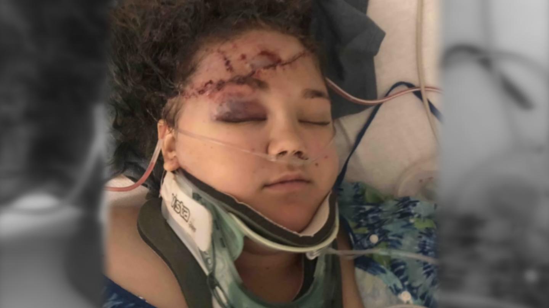 She needed three surgeries right away for internal bleeding, broken bonesand a collapsed lung. (Source: 3TV/CBS 5)