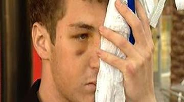 An ASU student says he was attacked by a group of guys. By Alicia Barron