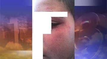 Photos show severe beating By Jennifer Thomas