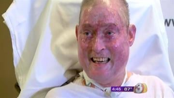 When he was rushed to Maricopa County Medical Center five months ago with serious burns over 90 percent of his body, Boyd Smith was not expected to survive. Smith, however, beat the odds, and this isn't the first time. By Catherine Holland